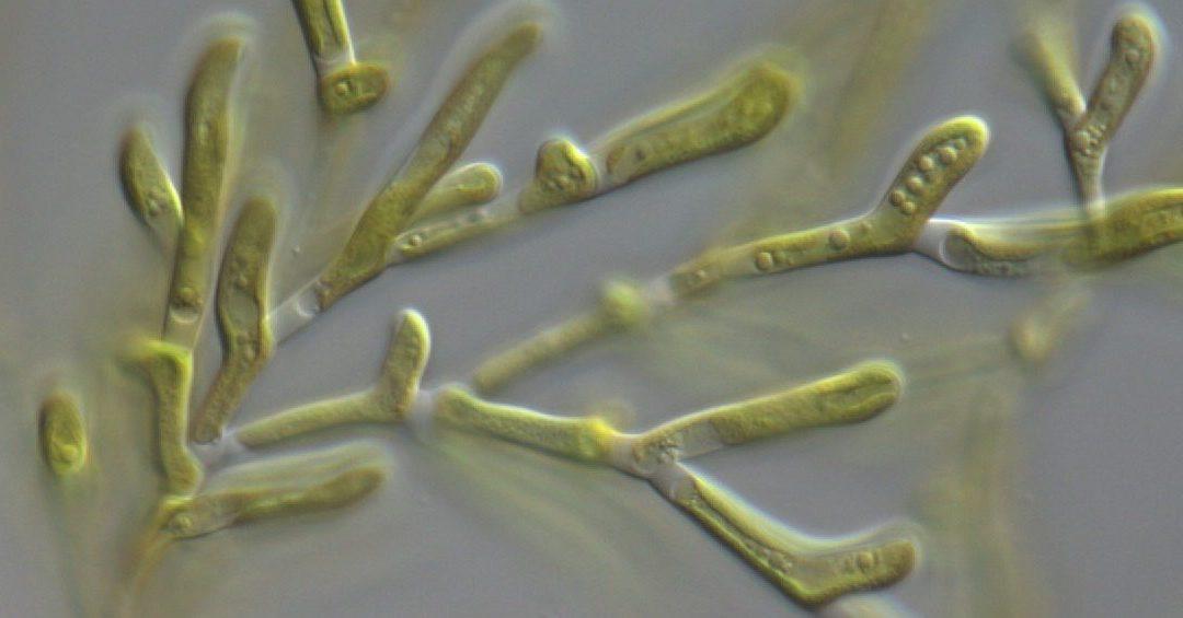 Culture Collection of Algae and Protozoa (CCAP) – Important Community Needs Survey